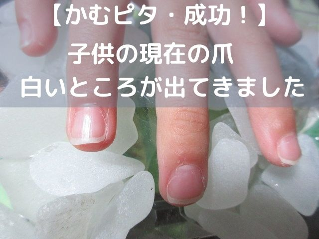 子供の爪噛みをやめる方法・かむピタを使って爪が伸び始めました